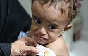 Yemen, the worst humanitarian crisis of the world